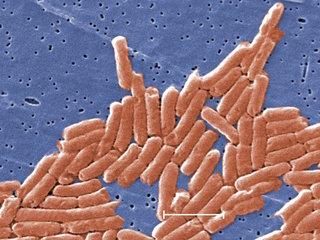 Salmonella outbreak linked to a raw turkey